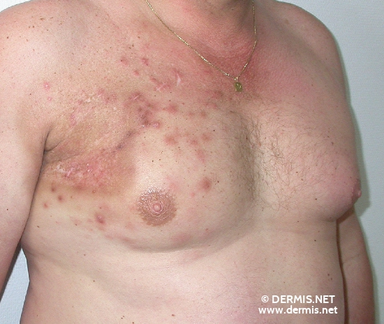 localisation: chest diagnosis: Skin Metastases of Melanoma / Skin Tumours Radiodermatitis, Chronic