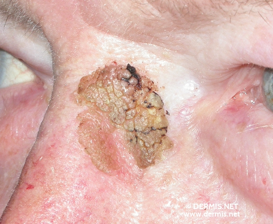 localisation: root of the nose diagnosis: Seborrheic Keratosis