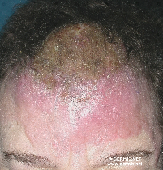 localisation: forehead diagnosis: Angiosarcoma