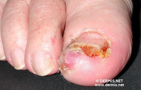localisation: toe diagnosis: Acrolentiginous Melanoma (ALM)