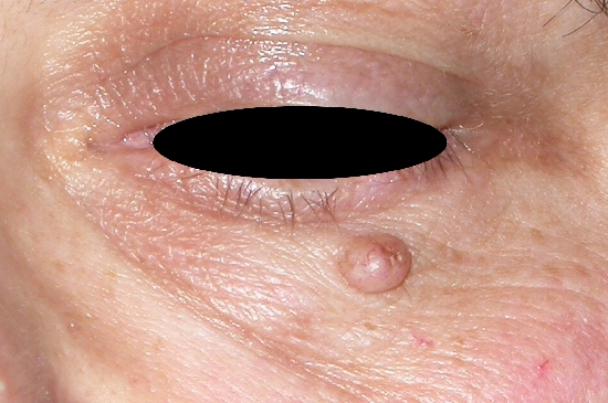 localisation: lower eyelid diagnosis: Nevocytic Nevus