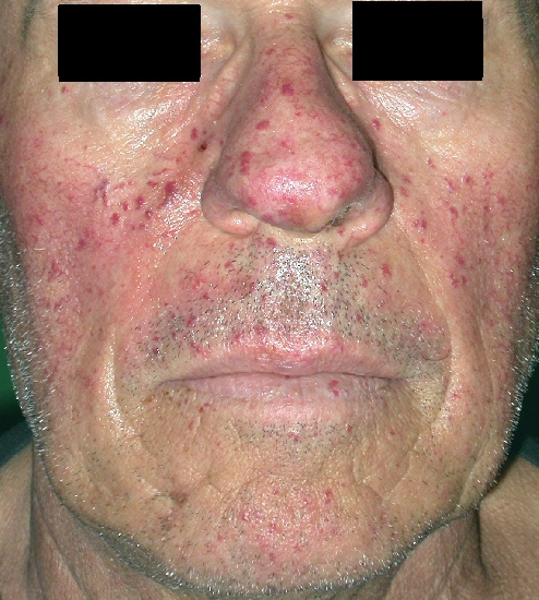 localisation: face diagnosis: Rendu-Osler Syndrome