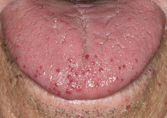 localisation: tongue diagnosis: Rendu-Osler Syndrome