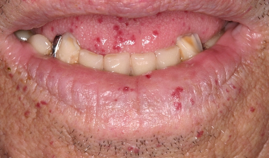 localisation: lower lip diagnosis: Rendu-Osler Syndrome