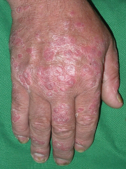 localisation: back of the hands diagnosis: Psoriasis Vulgaris, Chronic Stationary Type