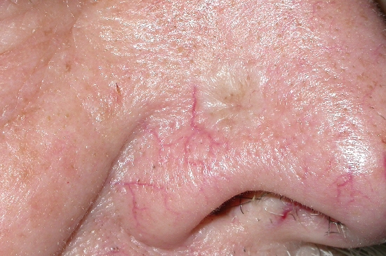 Basaalcelcarcinoom (BCC, basal cell carcinoma, ca ...