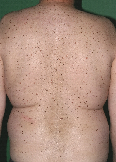 localisation: back diagnosis: Hereditary Dysplastic Nevus Syndrome