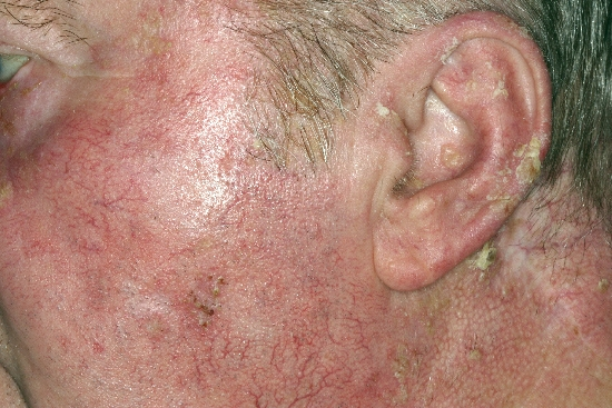 localisation: ear cheek diagnosis: Actinic Keratosis Bowen's Disease