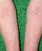 localisation: lower arms, diagnosis: Atopic Eczema