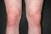 localisation: knee, diagnosis: Dermatitis Herpetiformis Duhring