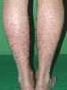 localisation: lower leg, diagnosis: Disseminated Essential Telangiectasia