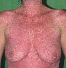 localisation: upper chest, diagnosis: Virus Exanthem