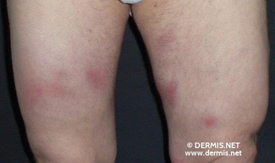 localisation: upper leg diagnosis: Erythema Nodosum