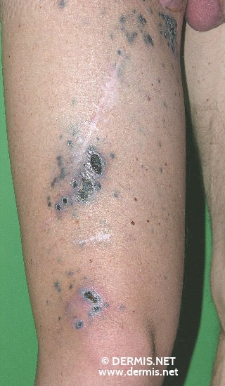 localisation: upper leg diagnosis: Skin Metastases of Melanoma / Skin Tumours