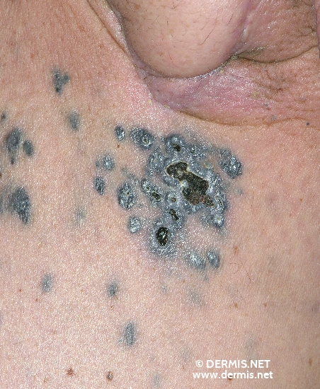 localisation: inguinal region diagnosis: Skin Metastases of Melanoma / Skin Tumours