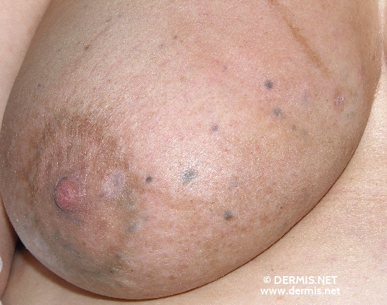 localisation: mamma diagnosis: Skin Metastases of Melanoma / Skin Tumours