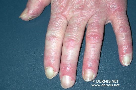 localisation: finger diagnosis: Chilblain Lupus