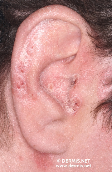 localisation: ear diagnosis: Psoriasis Vulgaris, Guttate Type