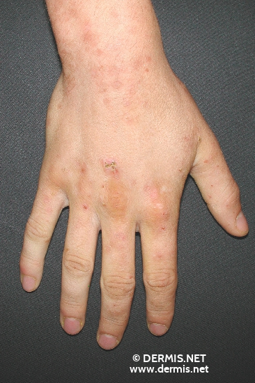 localisation: back of the hands diagnosis: Dermatitis Herpetiformis Duhring