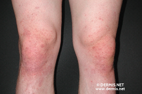 localisation: knee diagnosis: Dermatitis Herpetiformis Duhring
