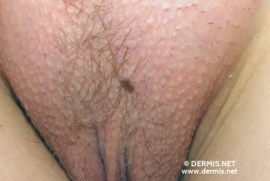 localisation: mons pubis diagnosis: Nevocytic Nevus