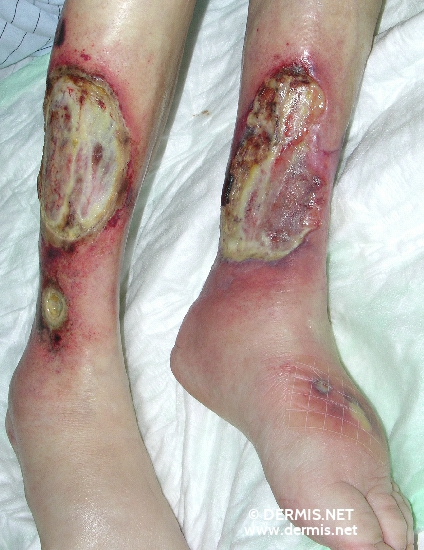 localisation: lower leg diagnosis: Vasculitis, Necrotizing