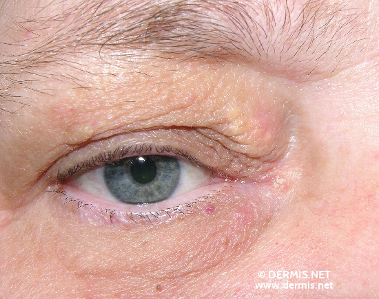 localisation: upper eyelid diagnosis: Xanthelasma