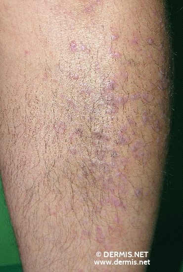 localisation: tibial diagnosis: Lichen Planus Exanthematicus