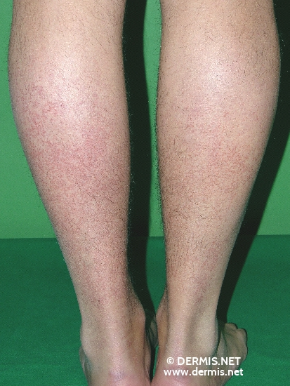 localisation: lower leg diagnosis: Disseminated Essential Telangiectasia