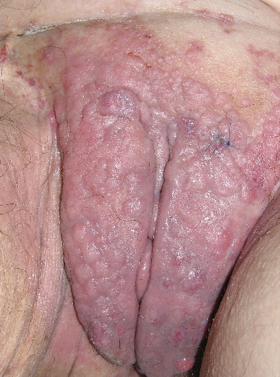 localisation: vulva diagnosis: Skin Metastases of Tumours of Internal Organs