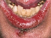 localisation: lower lip, chin, diagnosis: Pemphigus Mucosae, Pemphigus Vulgaris