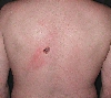 localisation: upper back, diagnosis: Superficial Spreading Melanoma (SSM)