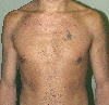 localisation: trunk, diagnosis: Neurofibromatosis Generalisata (von Recklinghausen)