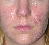 localisation: visage , diagnostic: Pyoderma Faciale