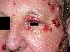 localisation: face, diagnosis: Pemphigus Vulgaris