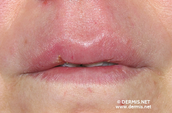 localisation: lips (skin) peri-oral diagnosis: Cheilitis Granulomatosa of Miescher