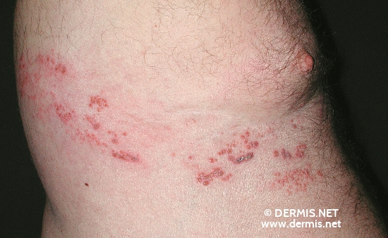 localisation: flank diagnosis: Herpes Zoster