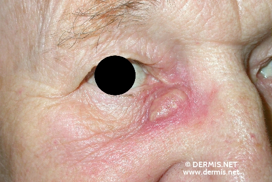 localisation: angle of the eye diagnosis: Epidermal Cyst