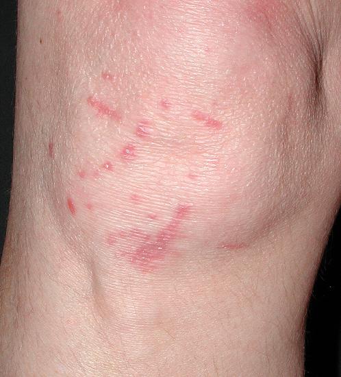 cutaneous sarcoidosis #10