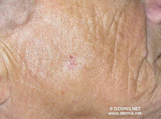localisation: cheek diagnosis: Basal Cell Carcinoma Solar or Senile Elastosis
