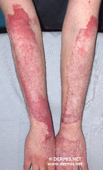 localisation: lower arms diagnosis: Sarcoidosis of the Skin, Plaque Form
