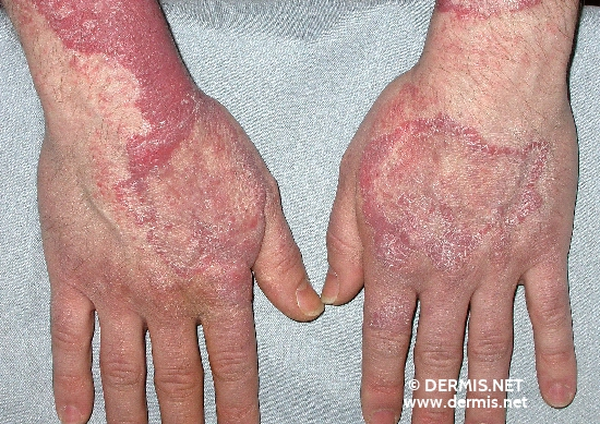 localisation: wrists back of the hands diagnosis: Sarcoidosis of the Skin, Plaque Form