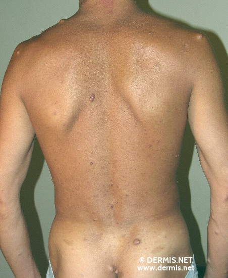 localisation: back diagnosis: Neurofibromatosis Generalisata (von Recklinghausen)