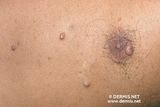 localisation: chest diagnosis: Neurofibromatosis Generalisata (von Recklinghausen)