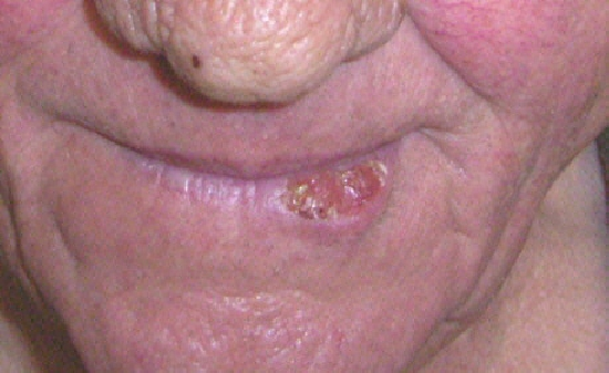 localisation: lower lip diagnosis: Squamous Cell Carcinoma