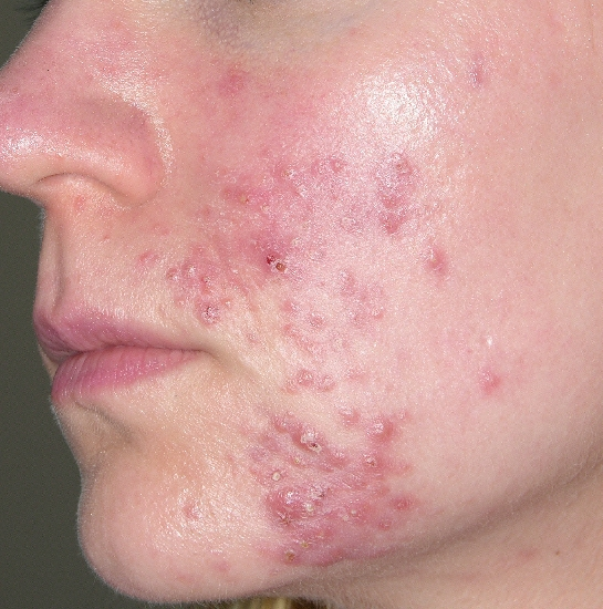 localisation: visage  diagnostic: Pyoderma Faciale