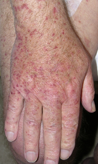 localisation: back of the hands diagnosis: Allergic Vasculitis