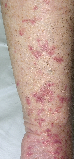 localisation: lower arms diagnosis: Allergic Vasculitis