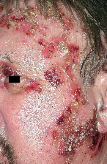 localisation: face diagnosis: Pemphigus Vulgaris