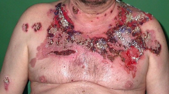 localisation: chest diagnosis: Pemphigus Vulgaris